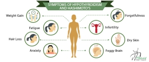 symptoms-hypothyroidism-and-hashimotos